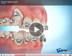 self-ligatingbracketsvideo1 Self-ligating brackets