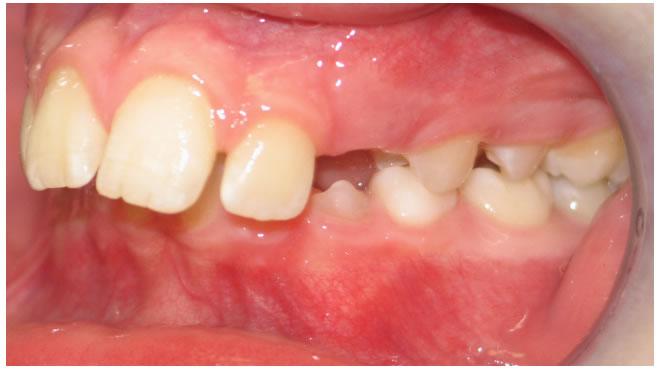 P15-5B Patient 15