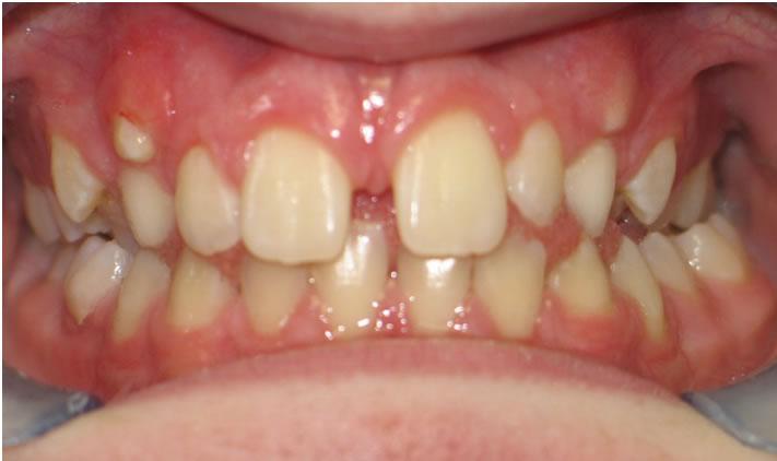 P17-4B Patient 16