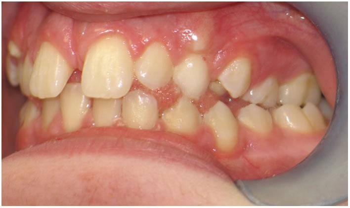 P17-5B Patient 16