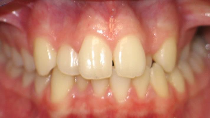 P2-4B Patient 2