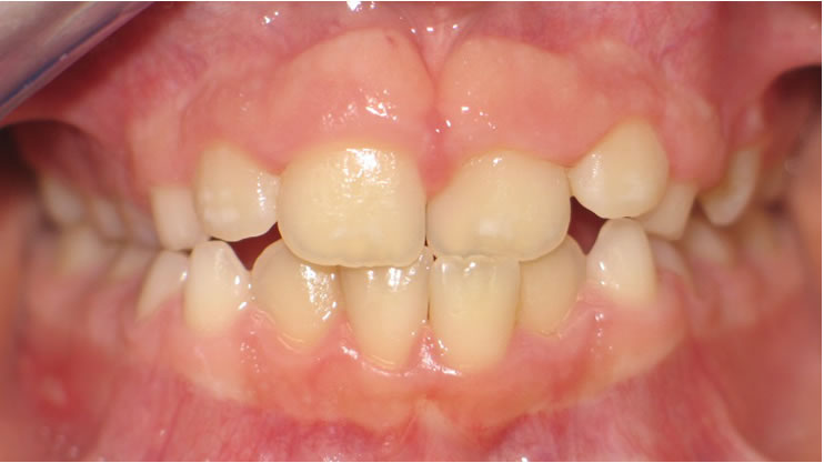 P3-4B Patient 3