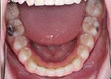 P5-12 Patient 5