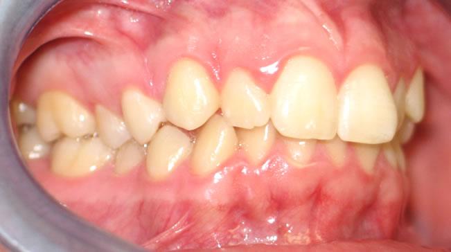 p1-3B Patient 1