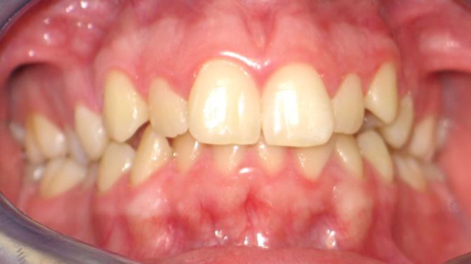 p1-4B Patient 1
