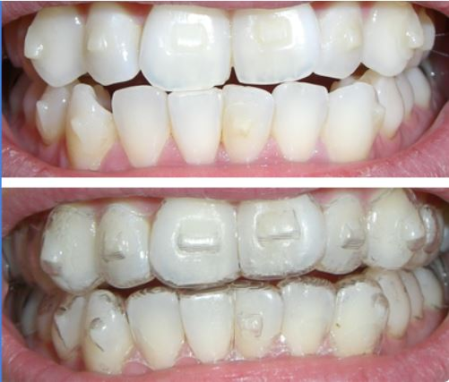 attachments3 Why Do I Need  Attachments Bonded to My Teeth for Invisalign?