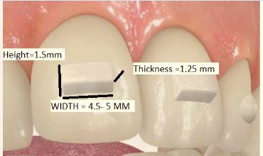 dimensions-of-attachment-2 Why Do I Need  Attachments Bonded to My Teeth for Invisalign?