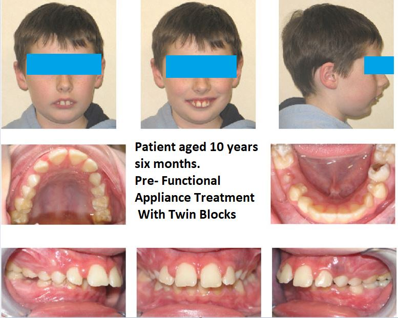 14 Can Orthodontic Functional Appliances Really Make the Lower Jaw Grow?