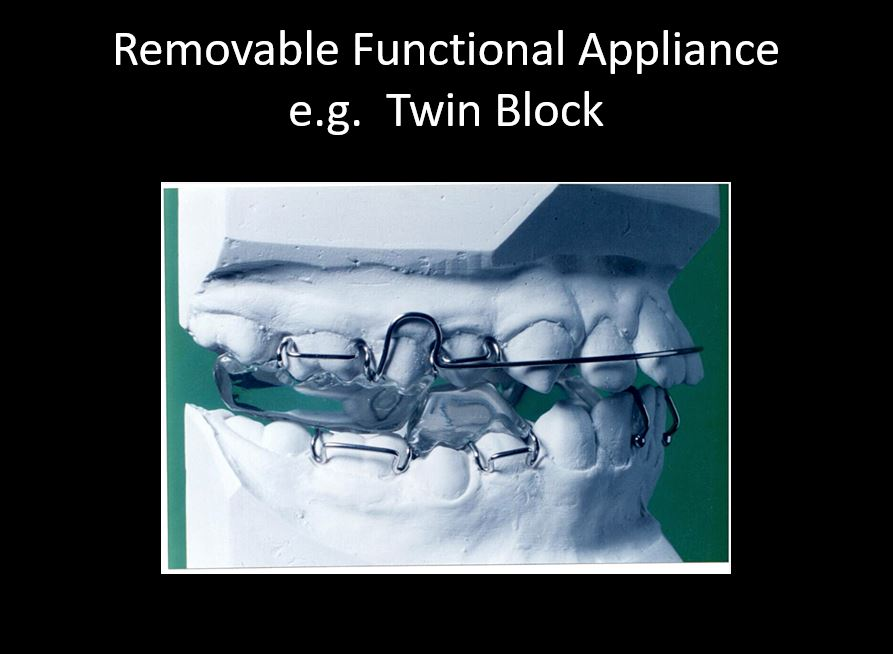 31 Can Orthodontic Functional Appliances Really Make the Lower Jaw Grow?