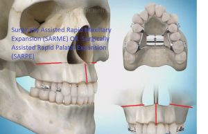 PIC-SARME-300x194 Sideways Expansion in Orthodontics