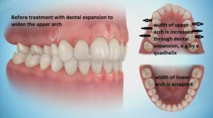 Pic-transverse-un-corrected-300x167 Sideways Expansion in Orthodontics