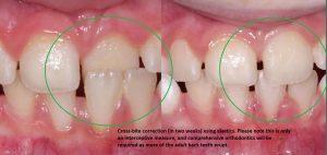 correction-of-anterior-cross-bite-with-elastics.-300x142 What is interceptive orthodontics?