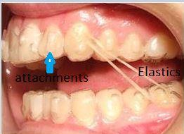 invisalign-elastic-3 Will I have to wear elastics with invisalign?