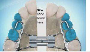 new-bone-300x175 Sideways Expansion in Orthodontics