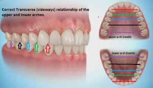 pic-1-300x172 Sideways Expansion in Orthodontics