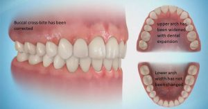 pic-transverse-corrected-300x157 Sideways Expansion in Orthodontics