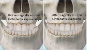 sarme-pre-and-post-300x172 Sideways Expansion in Orthodontics