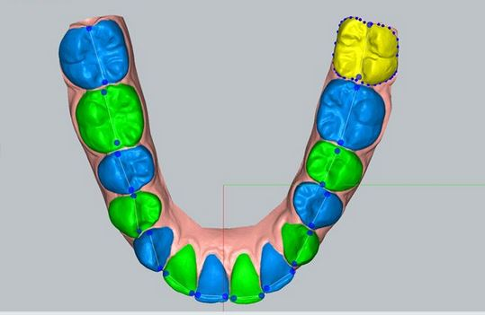 segmented-arch What is Invisalign and How Does it Make Teeth Move ? Part A.