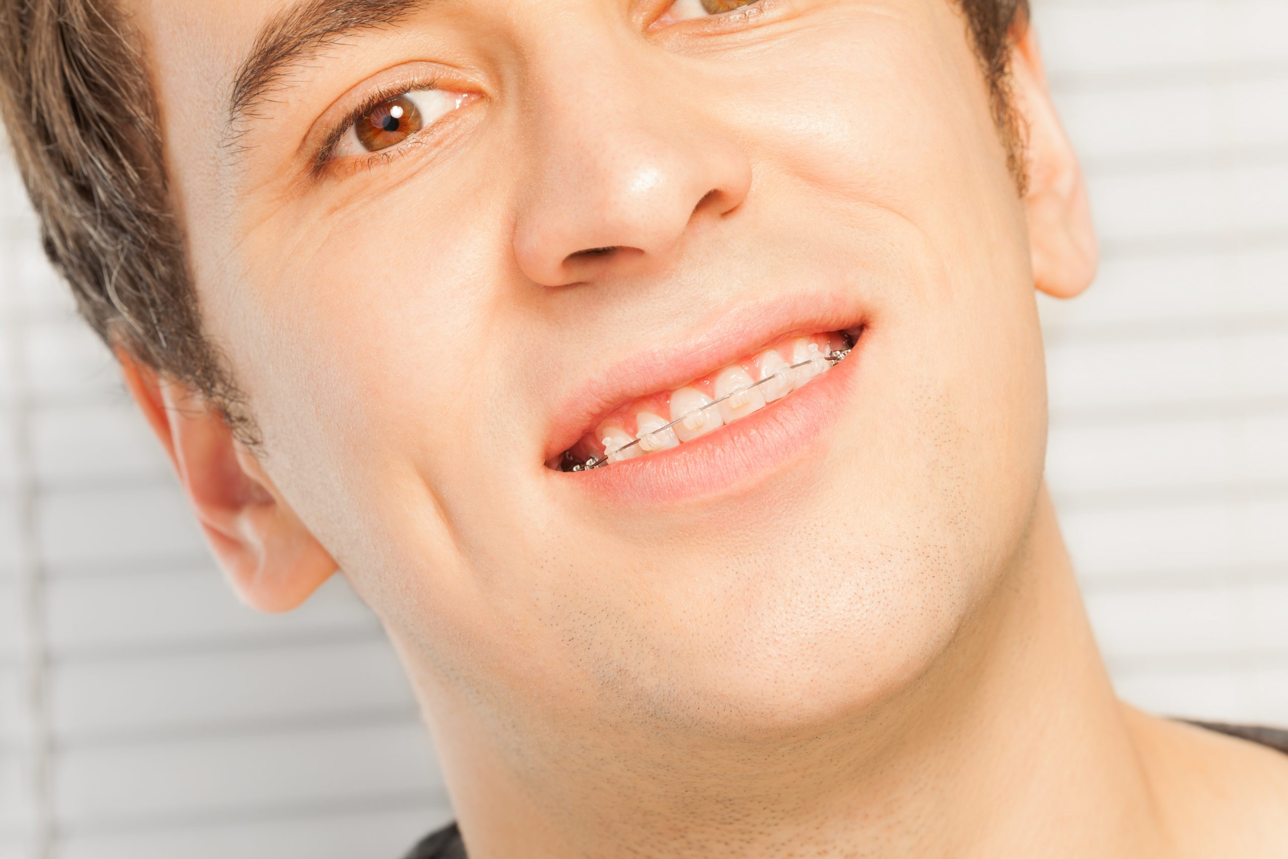 shutterstock_544569865-scaled What is Invisalign and How Does it Make Teeth Move ? Part A.