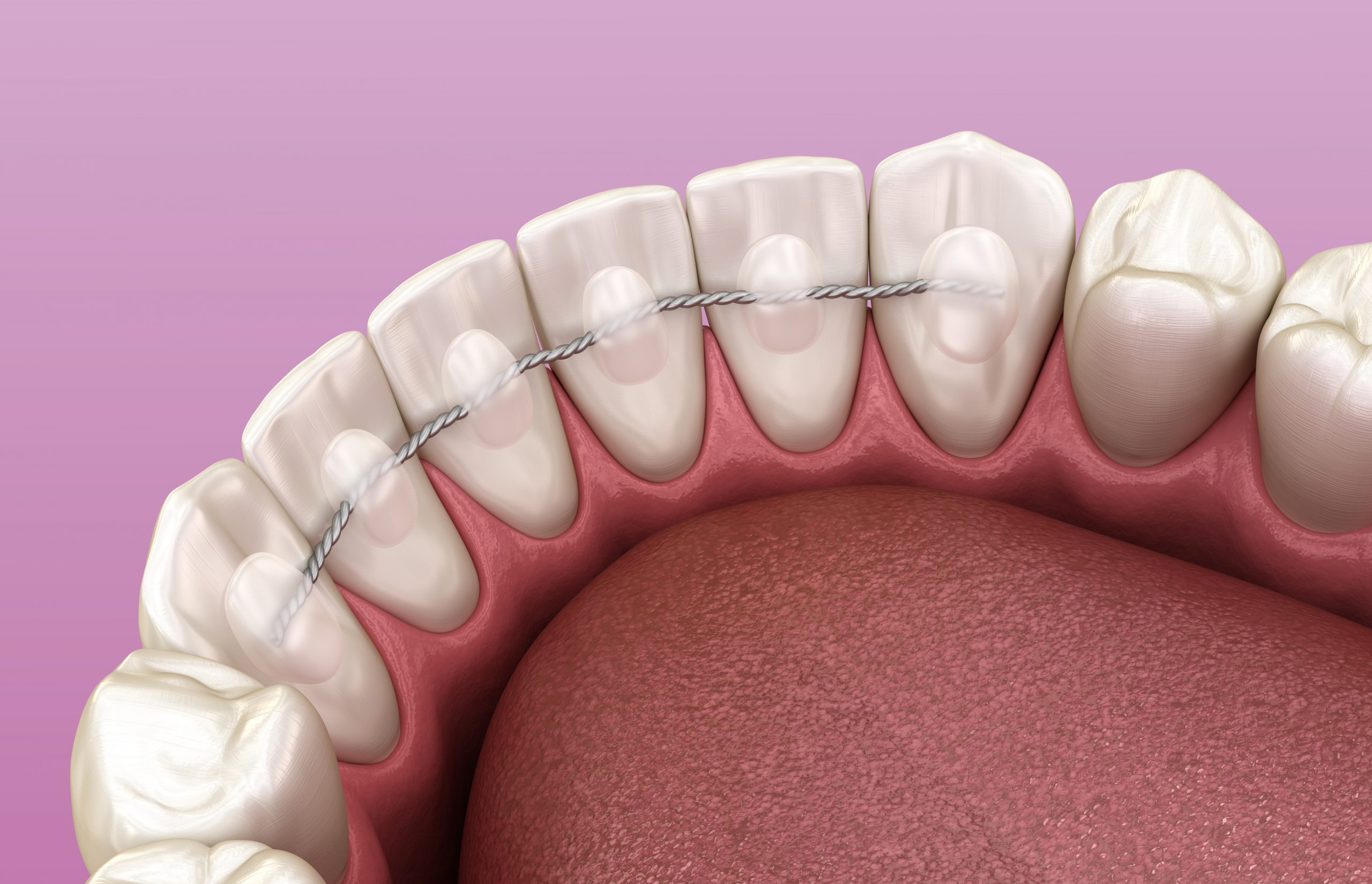 shutterstock_1486975727-scaled Where is My Orthodontic Retainer?