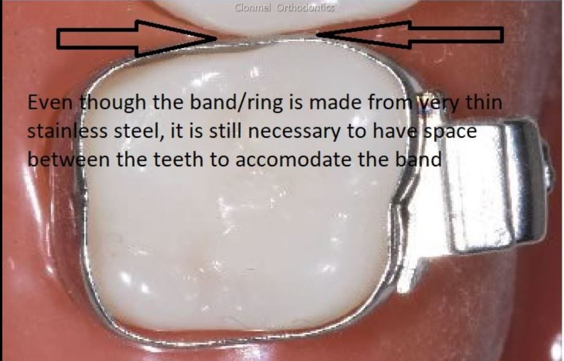 band-2 What are Orthodontic Separators / Spacers?