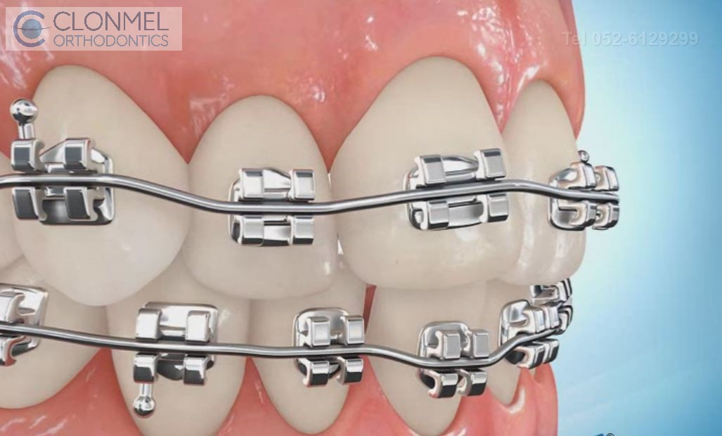 Bracket-placed-4 How are braces  put/placed on the teeth?