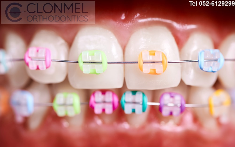 Colours-on-ceramic-braces-pw What are Coloured Braces ?