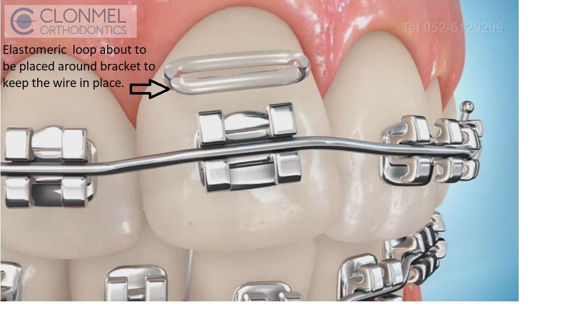Elastomeric-about-to-be-placed How are braces  put/placed on the teeth?