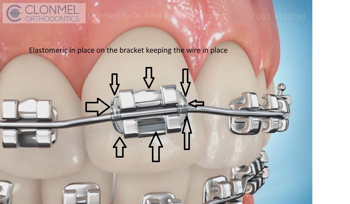 Elastomeric-in-place How are braces  put/placed on the teeth?