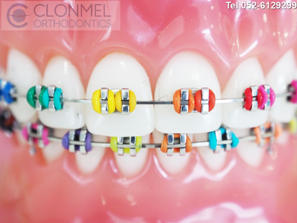 Multi-colours-pw What are Coloured Braces ?