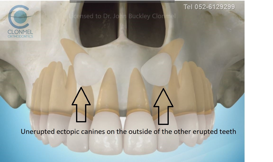 canines-2-post-paint-pw Ectopic Canines