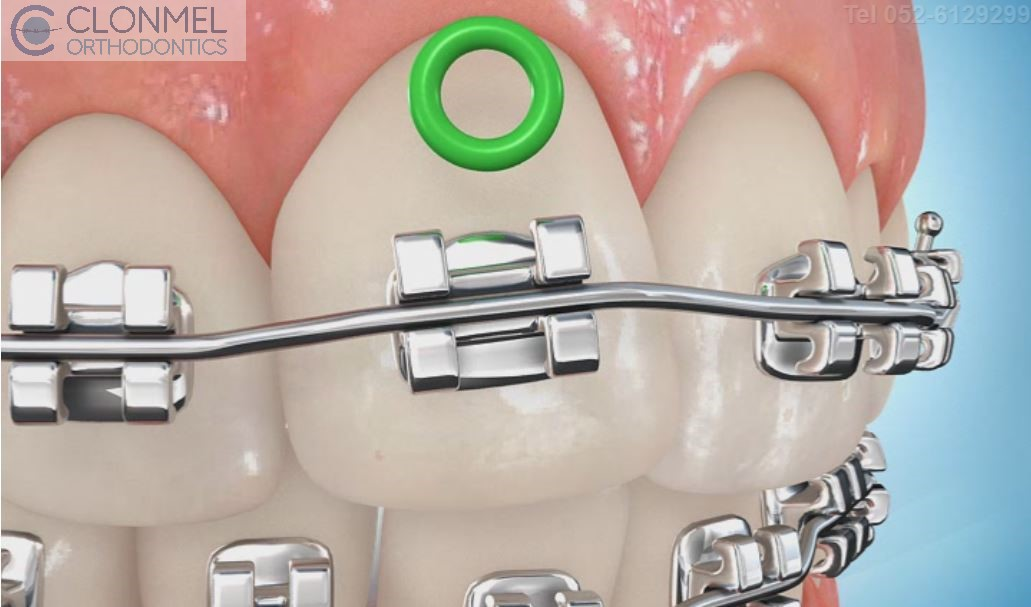 coloued-braces-5JPG-pw What are Coloured Braces?