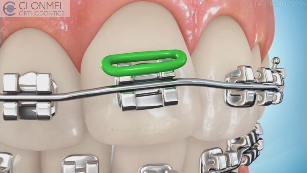 coloued-braces-6-pw What are Coloured Braces?