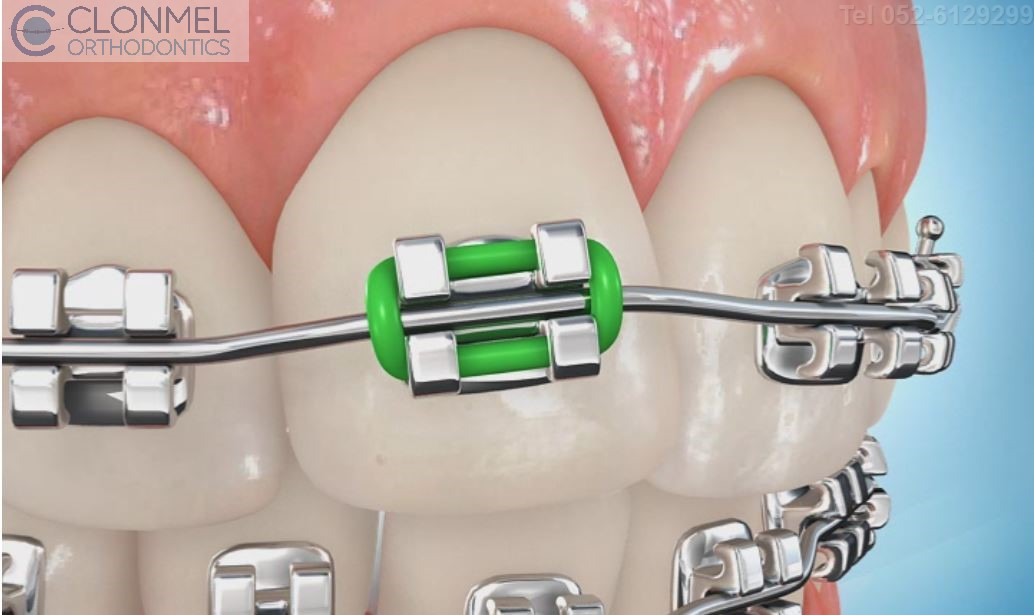 coloued-braces-7JPG-pw What are Coloured Braces?