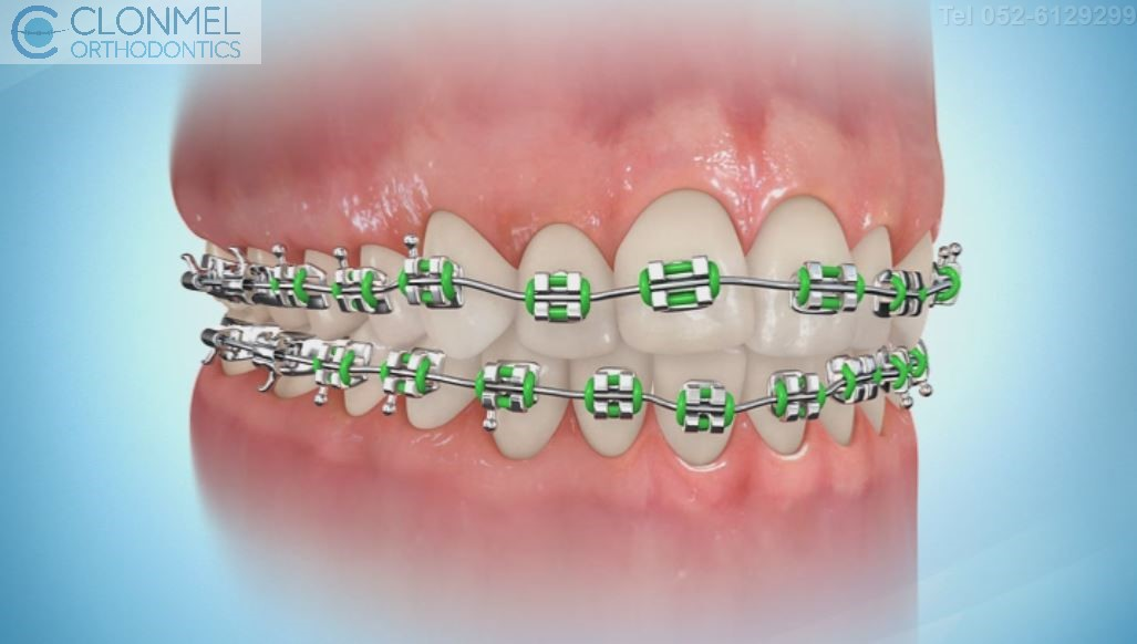 coloued-braces-8pw What are Coloured Braces?