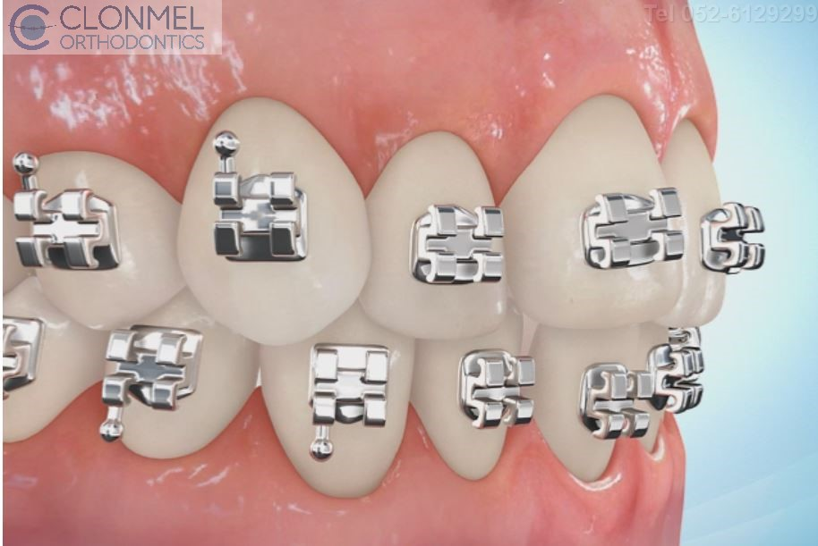 coloured-braces-3pw What are Coloured Braces ?