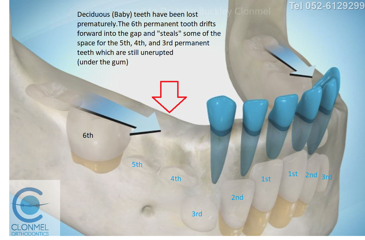 Cr2-post-art What is dental (orthodontic) crowding?