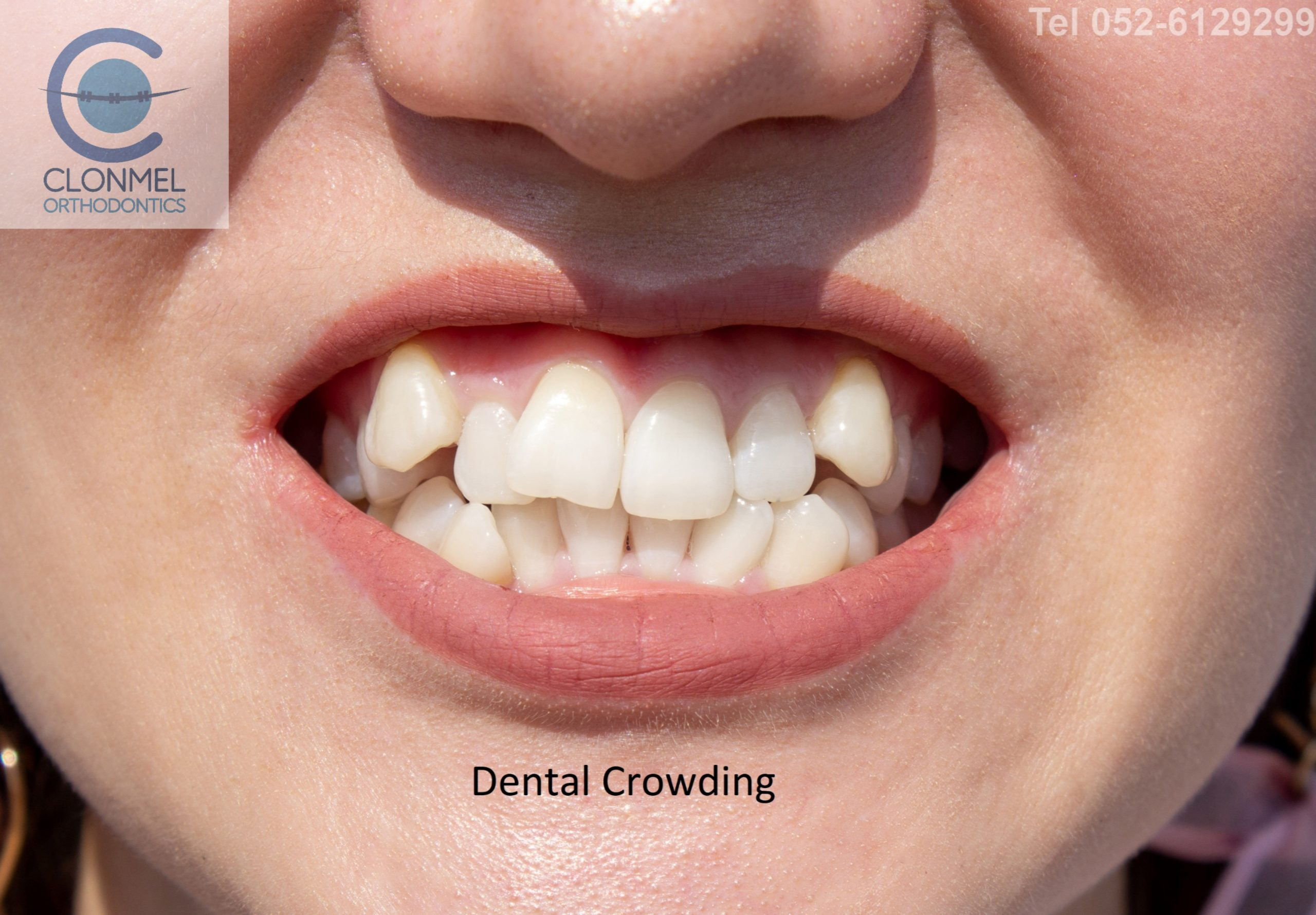 Dental-Crowding-1-scaled What is dental (orthodontic) crowding?