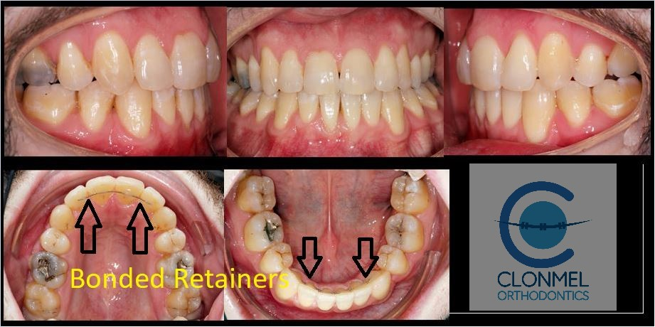 Johnny-bonded-retainer What are bonded  (fixed) orthodontic retainers?