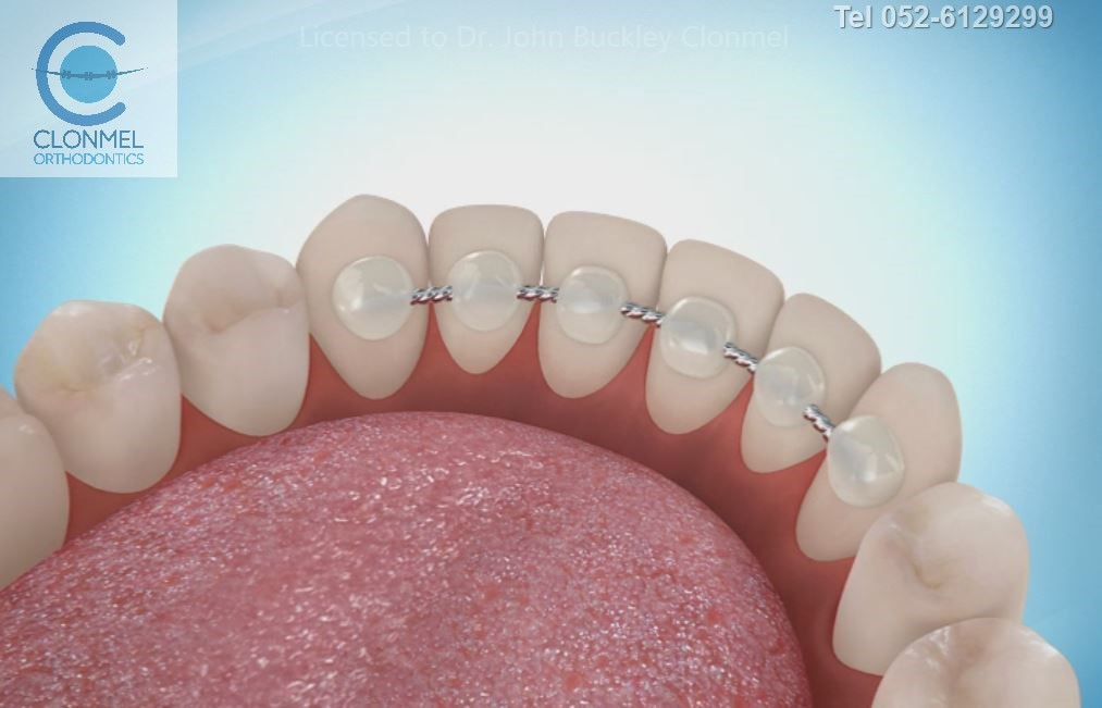 bonded-retainer-pre-export-4-1 What are bonded  (fixed) orthodontic retainers?