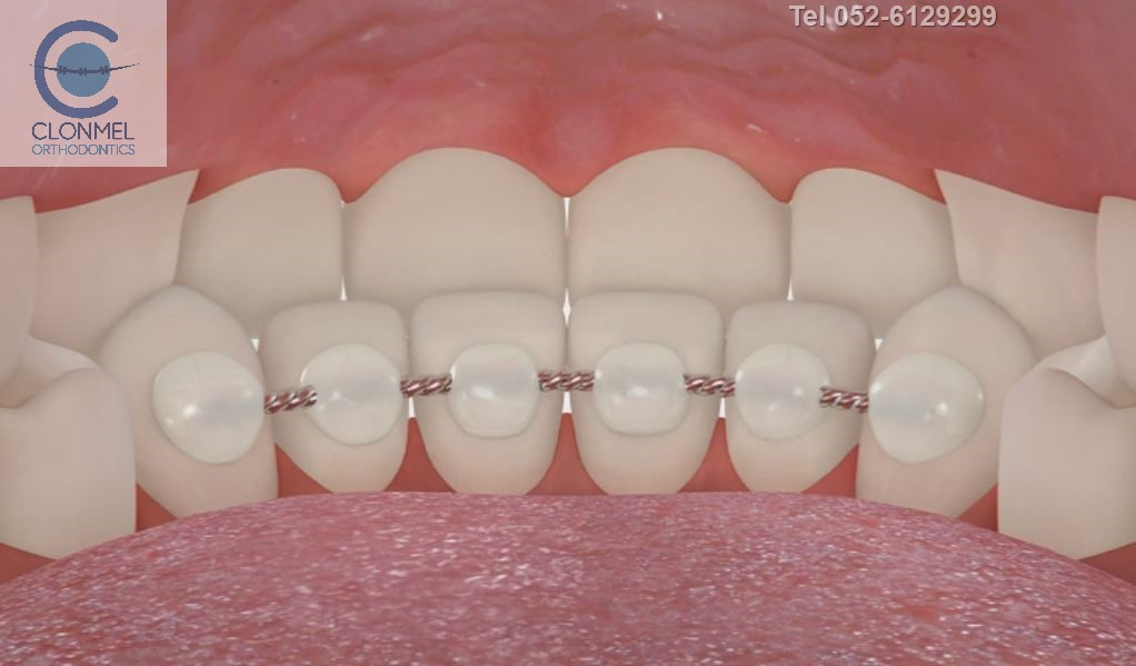 bonded-retainer-pre-export-6 What are bonded  (fixed) orthodontic retainers?