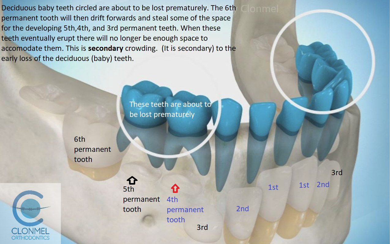 cr1-post-art What is dental (orthodontic) crowding?
