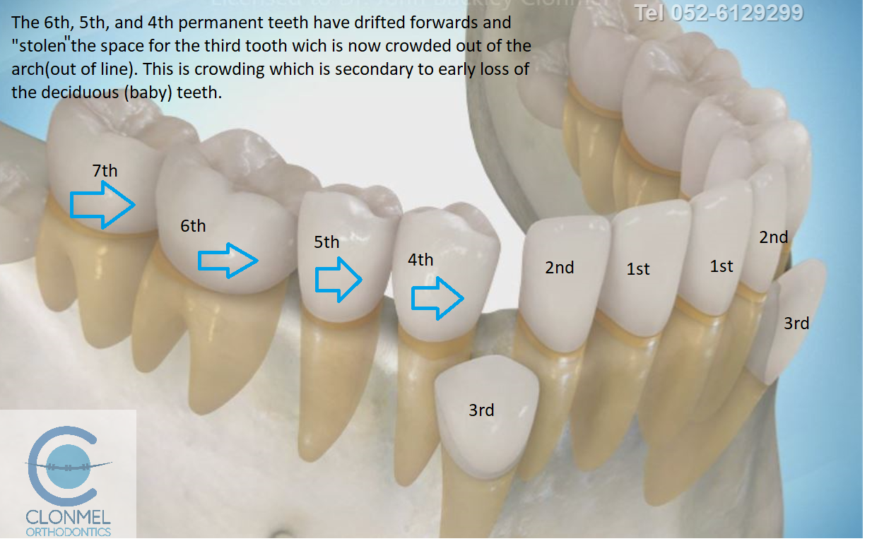 cr4-post-art What is dental (orthodontic) crowding?