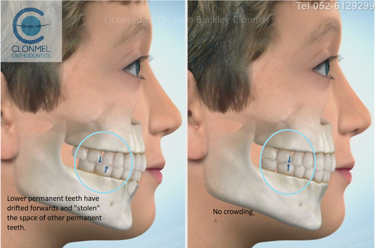 cr5-post-art What is dental (orthodontic) crowding?
