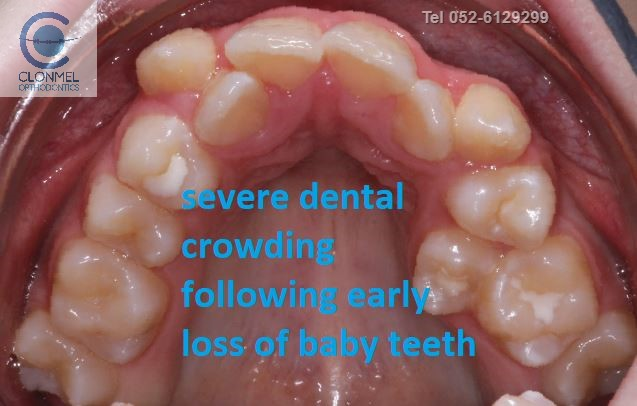 cr6-post-art What is dental (orthodontic) crowding?