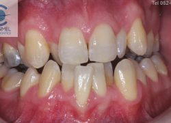 What is dental (orthodontic) crowding?