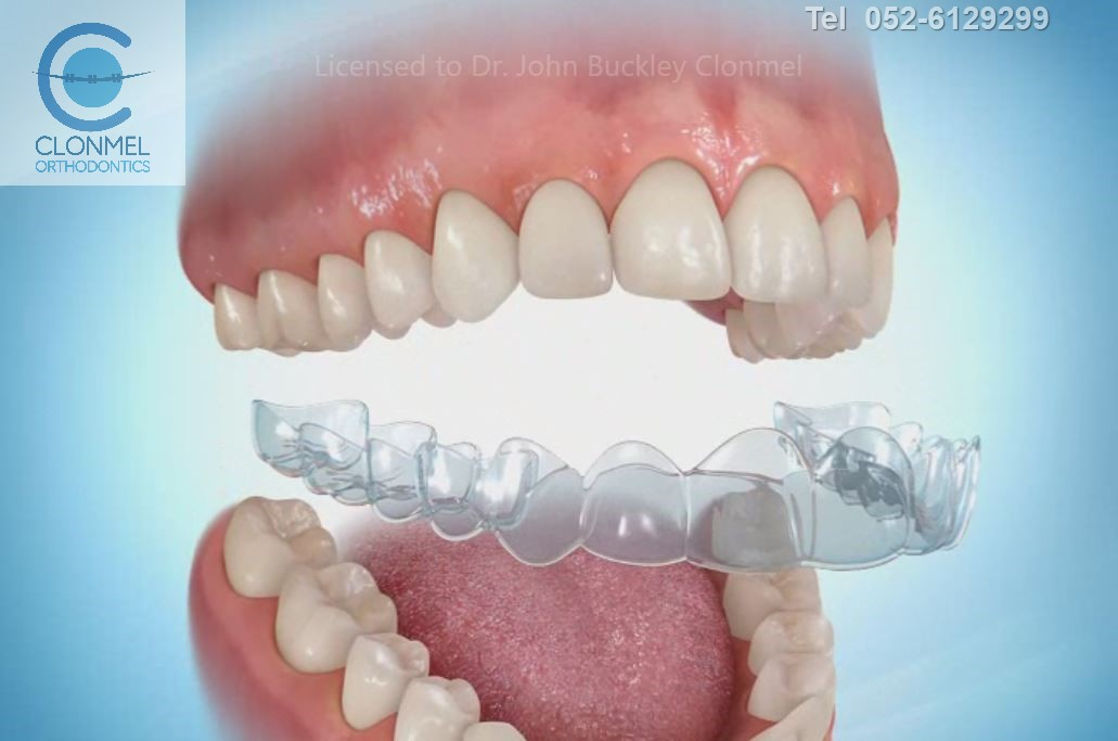 essix-pre-export What are bonded  (fixed) orthodontic retainers?
