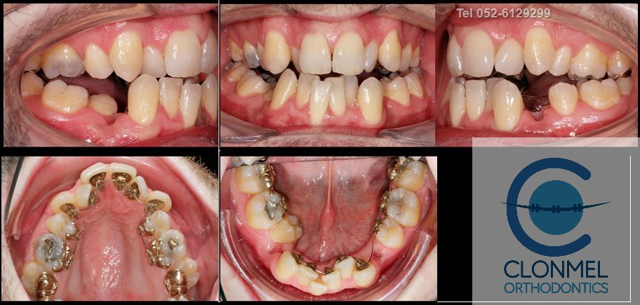 johnny-mid-rx What is dental (orthodontic) crowding?