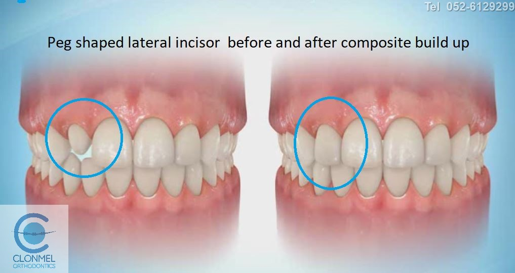 peg-41-post-art-JPG What are peg shaped lateral incisors?