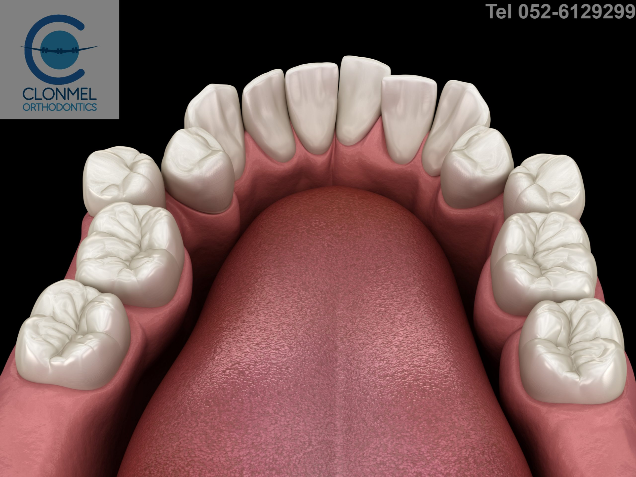 shutterstock_1797489856-1-scaled What is dental (orthodontic) crowding?